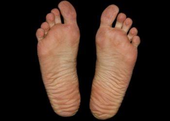Kilka słów na temat codziennej pielęgnacji stóp